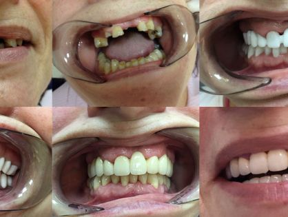 Algunos de nuestros tratamientos (antes y después)