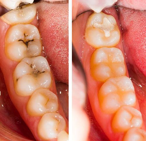 Antes y después del tratamiento de la caries