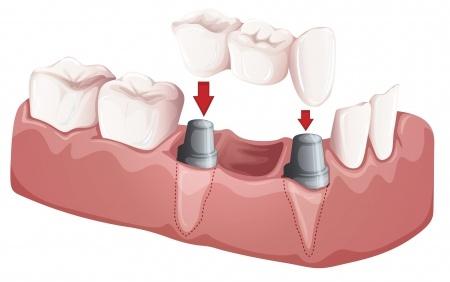 implante-con-puente