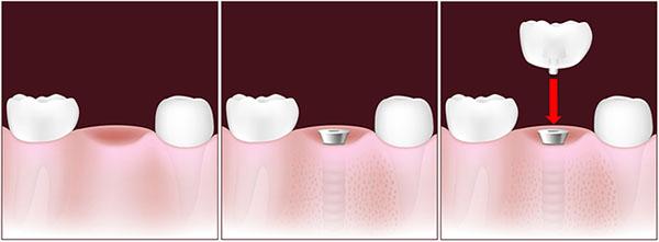 implante-un-diente-solo