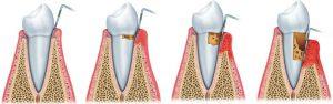 periodontitis-clinica