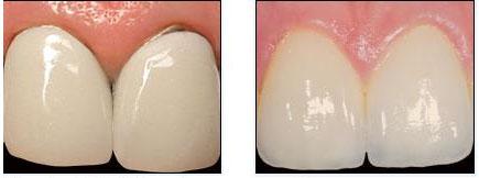 tipos-de-coronas-dentales