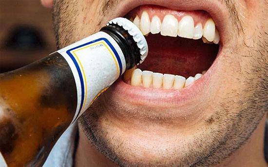 4 cosas que no debes hacer con tus dientes