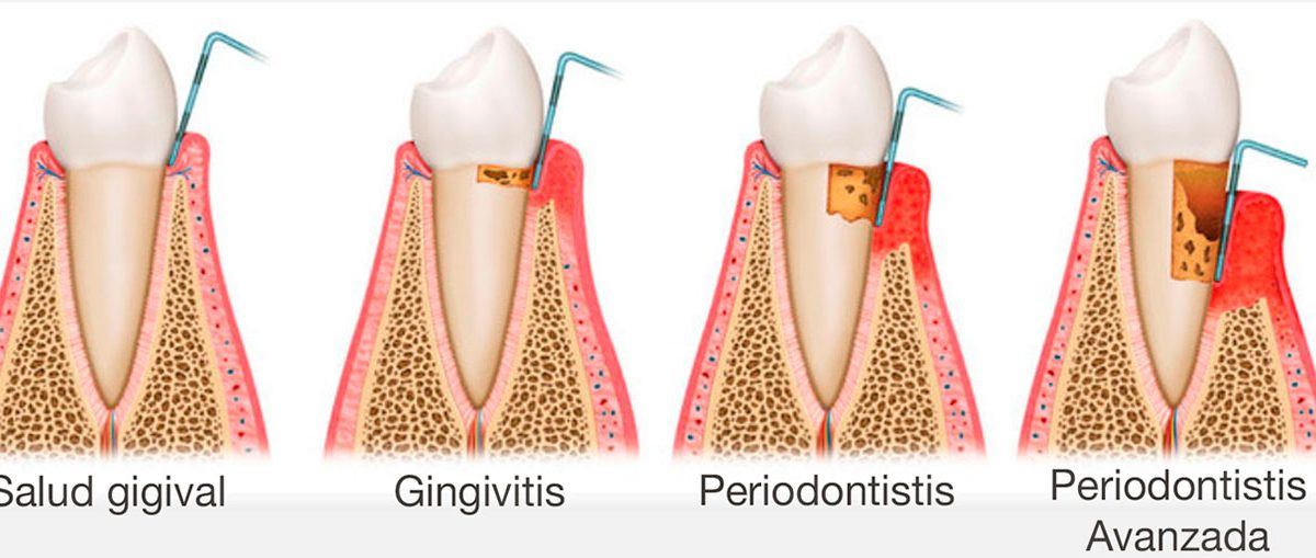 El tratamiento periodontal